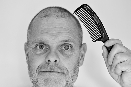 Study: plucking hair can regrow more and possible baldness cure