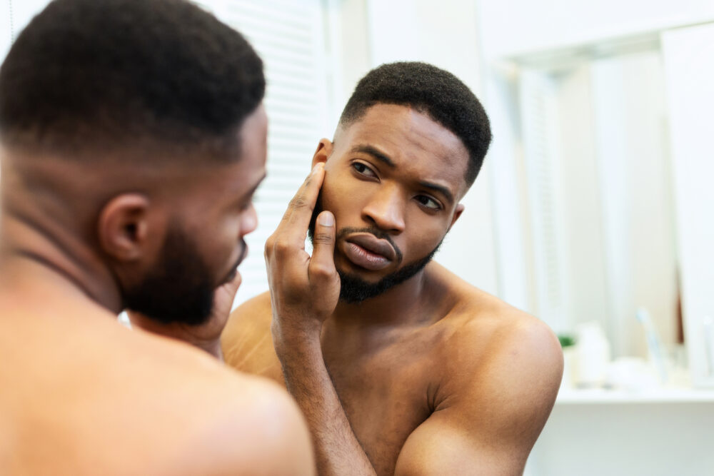acne and health